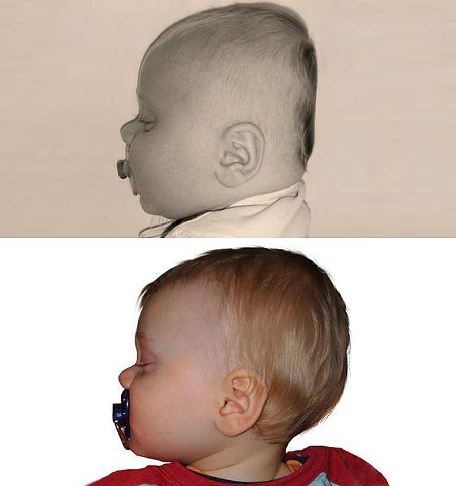 BabyDorm Kissen kaufen | Babymaxi.de